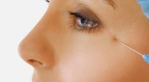 Rinoplastica per modellare il naso