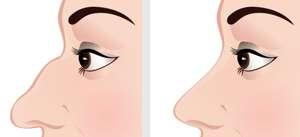 rinoplastica naso