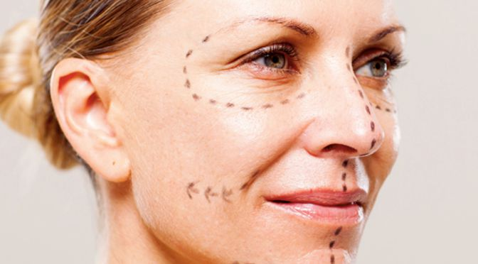 Peeling laser di una faccia Izhevsk
