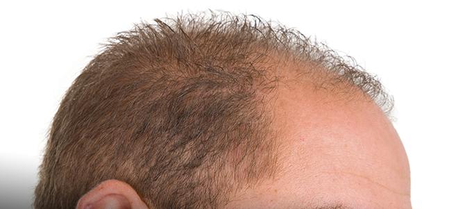 Trapianto capelli FUE per calvizie