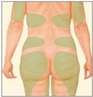 Liposcultura del corpo