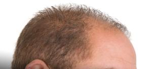 PRP capelli: la novità contro la calvizie androgenetica