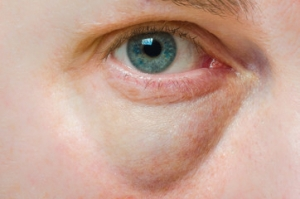 Come rimuovere le borse sotto gli occhi?